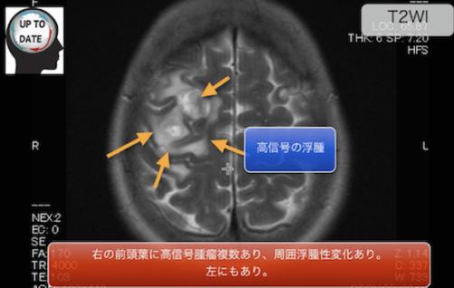 brainmeta