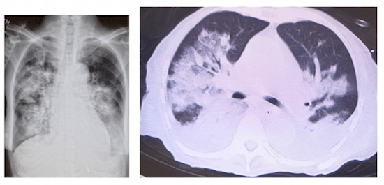 cardiogenic pulmonary edema