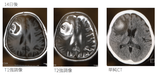 cerebral-hemorrhage-mri-change
