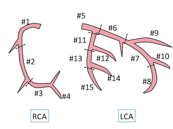 coronal artery anatomy1