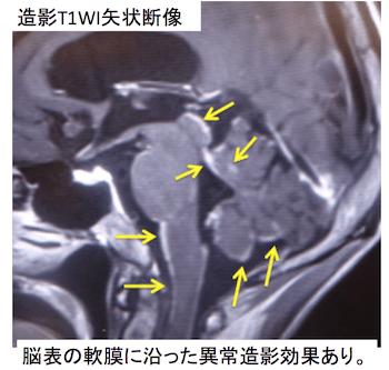 eptomeningeal metastasis2