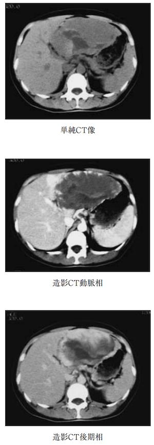hemangioma hepatic