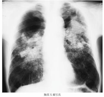 progressive massive fibrosis on Xray