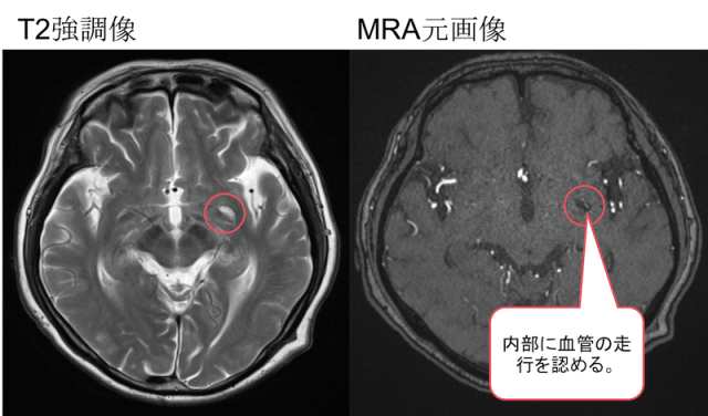 Perivascular space mri findings