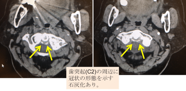 crowned dens syndrome CT findings