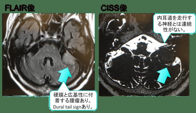 meningioma mri findings