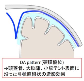 DA pattern