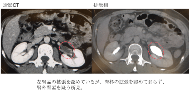 Extrarenal pelvis CT findings