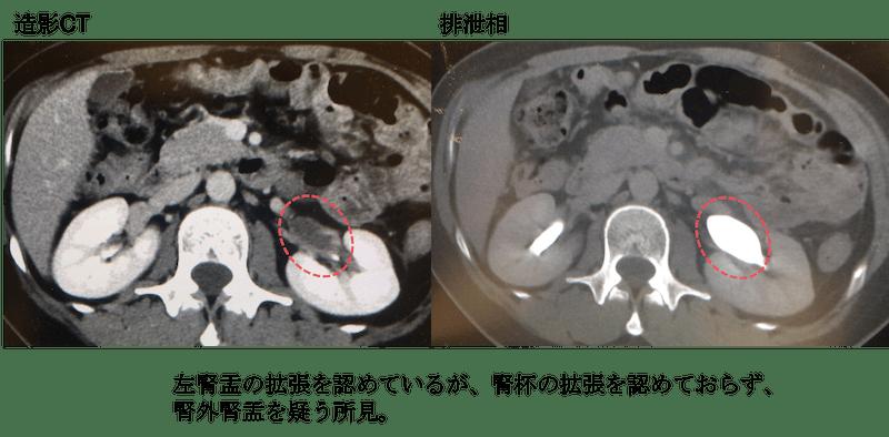 Extrarenal pelvis CT findings