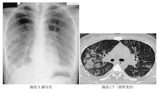 acute eosinophilic pneumonia
