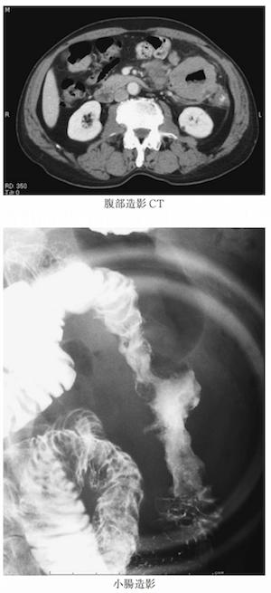 aneurysmal dilatation