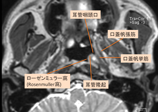 epipharyngeal carcinoma