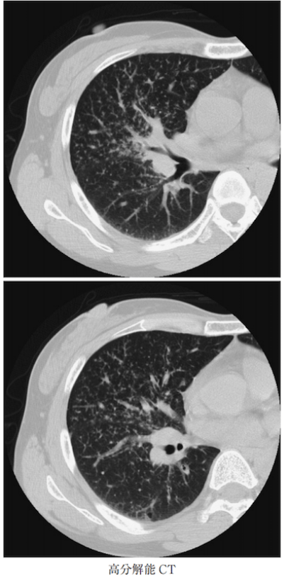 sarcoidosis lung