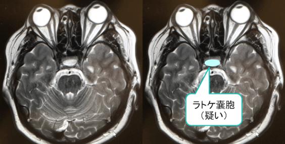 ラトケ嚢胞のMRI画像