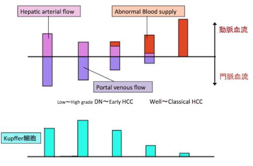 hepatocellular carcinoma1