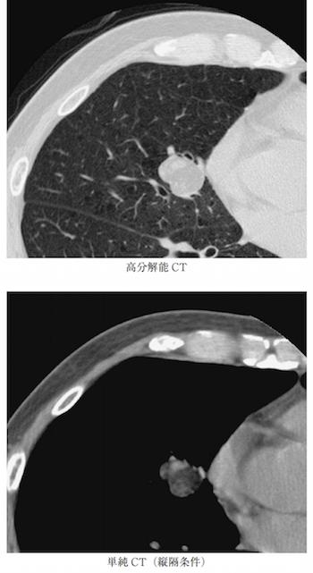 lung hamartoma
