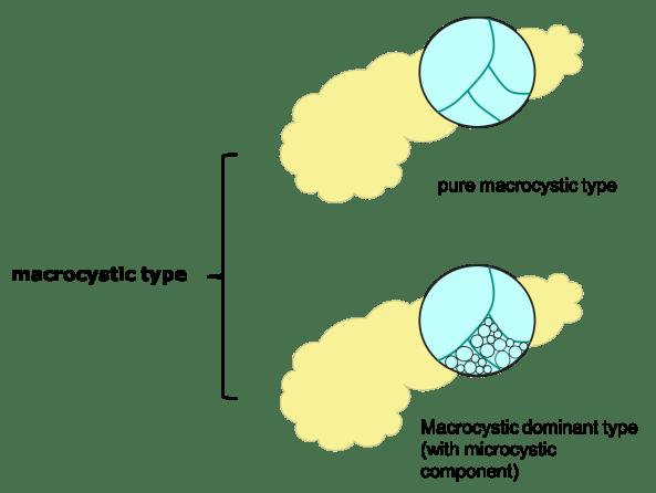 macrocystic type of SCN SCT