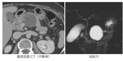 serous-cystic-neoplasm