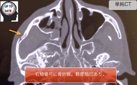ZMC fracture