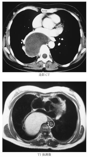 bronchogenic cyst