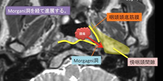 epipharyngeal carcinoma3