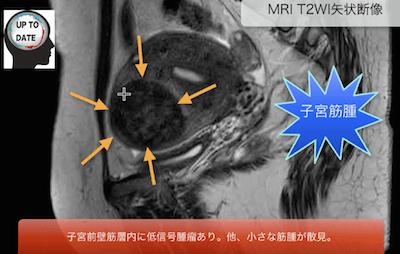 uterine myoma