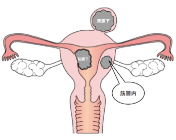 uterine myoma1