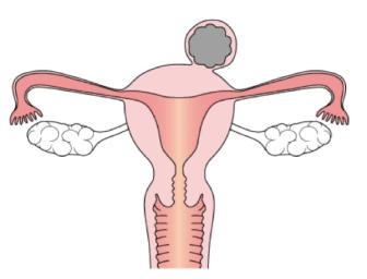 uterine myoma2