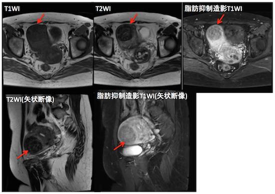 uterine myoma4