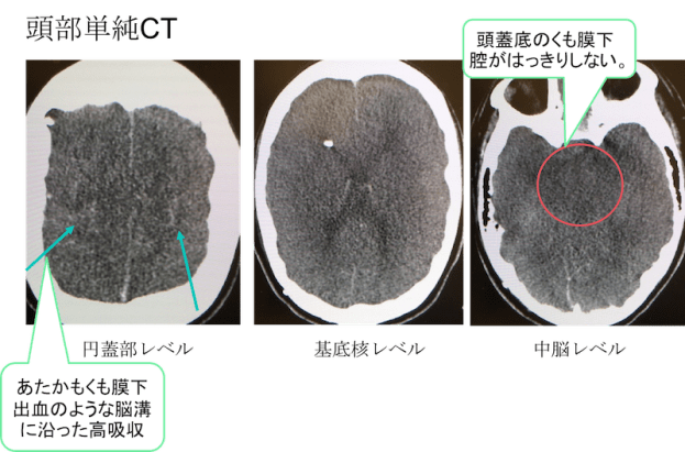 Brain Hypoxia CT findings