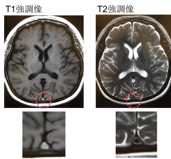 cerebral venous sinus thrombosis mri findings1