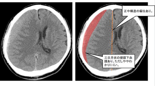 chronic-subdural-hematoma%ef%bc%95