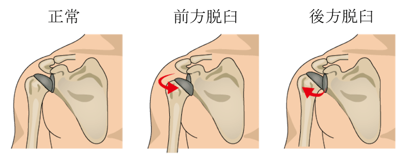 recurrent dislocation of shoulder joint1
