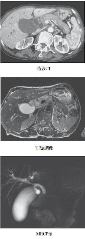 IgG4-related cholangitis