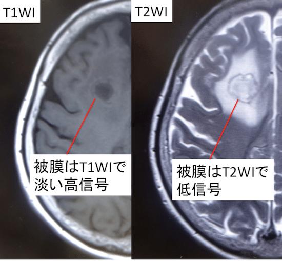 brain abscess1