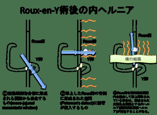 internal hernia post roux-en-Y