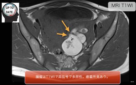 ruptureofovariantumor1
