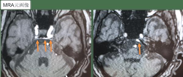 内頸動脈海綿状脈洞瘻(CCF)後方型のMRA元画像