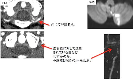 VA dissection