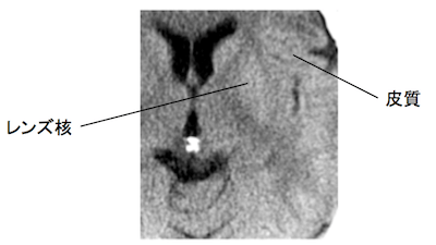 early CT sign
