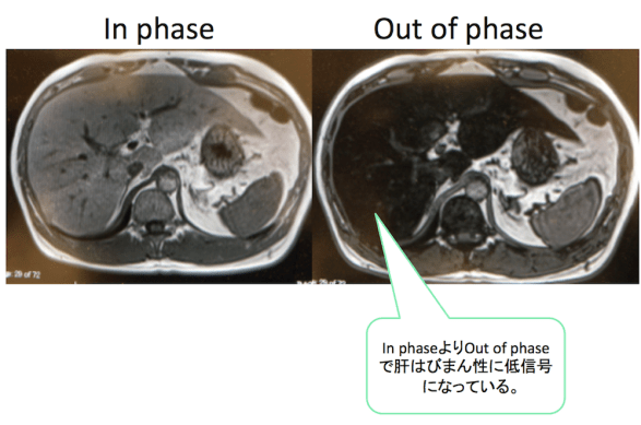 fatty-liver-mri-in-phase-out-of-phase