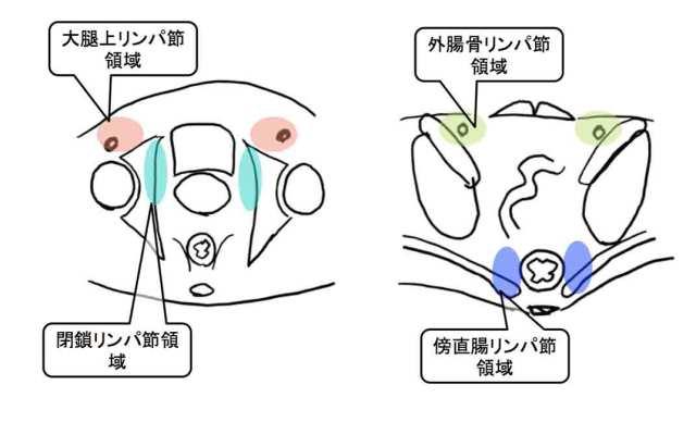 lympho-node-metastasis-of-pc