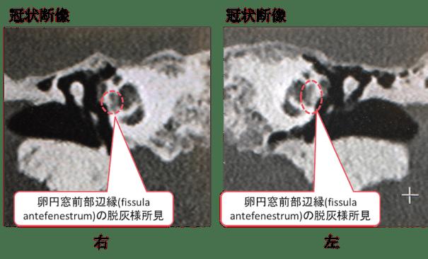 otosclerosis fenestral type CT findings2