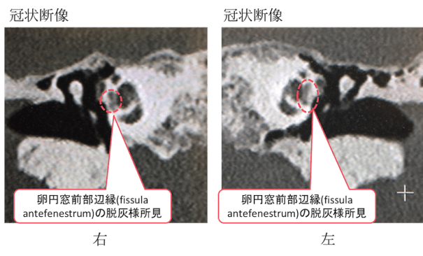 otosclerosis fenestral type CT findings2