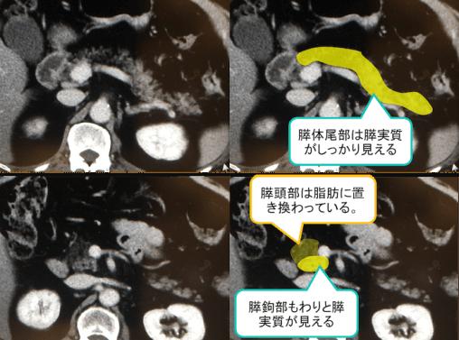 膵臓の脂肪置換のCT画像