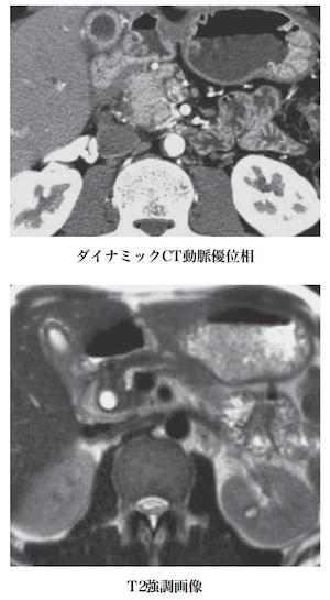 groove pancreatitis