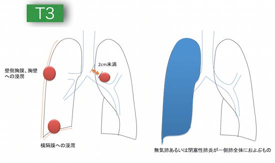 lungcancerT3