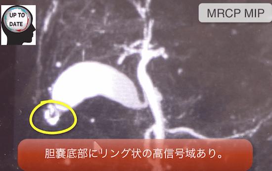 GB adenomyomatosis1