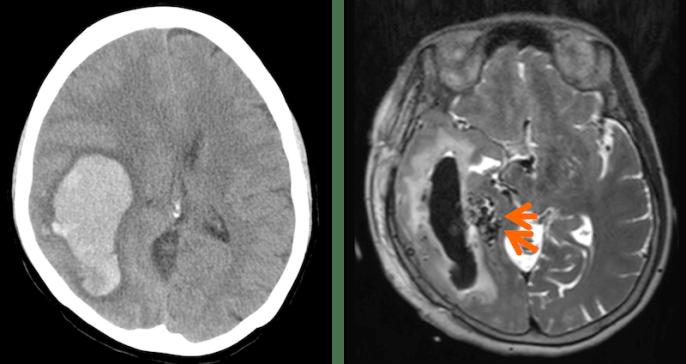 脳動静脈奇形による脳出血のCT,MRI画像