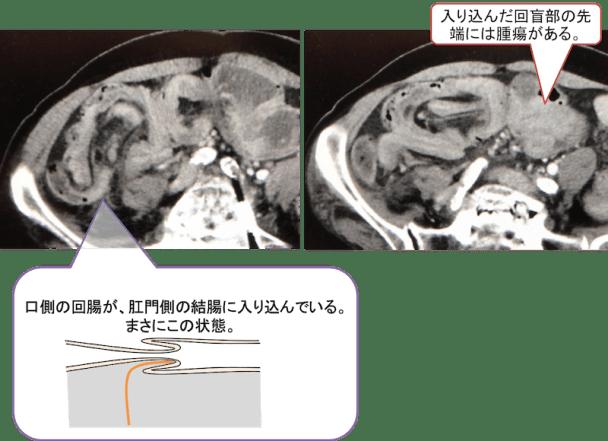 腸重積のCT画像及び解説